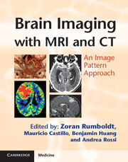Brain Imaging with MRI and CT