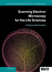 Scanning Electron Microscopy for the Life Sciences
