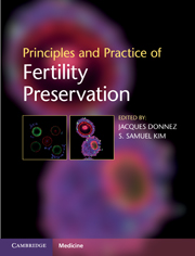 Principles and Practice of Fertility Preservation
