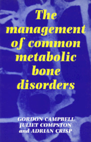 The Management of Common Metabolic Bone Disorders