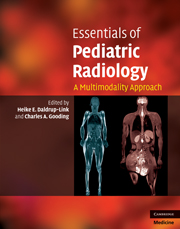 Essentials of Pediatric Radiology