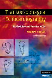 Transoesophageal Echocardiography