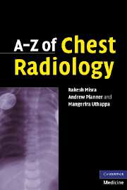 A-Z of Chest Radiology