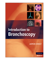 Introduction to Bronchoscopy