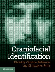 Craniofacial Identification