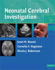 Neonatal Cerebral Investigation
