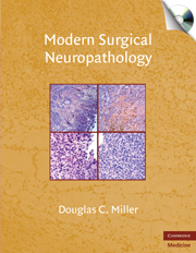 Modern Surgical Neuropathology with CD-ROM