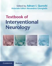 Textbook of Interventional Neurology