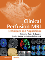 Clinical Perfusion MRI