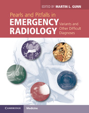 Pearls and Pitfalls in Emergency Radiology