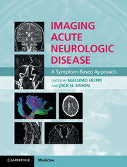Imaging Acute Neurologic Disease