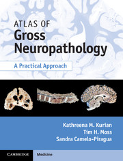 Atlas of Gross Neuropathology - Kathreena M Kurian