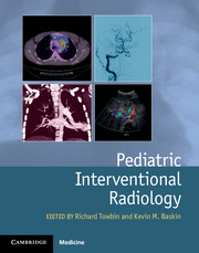 Pediatric Interventional Radiology