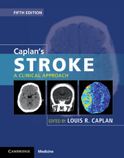 Caplans stroke clinical approach 5th edition neurology and a clinical approach fandeluxe Images
