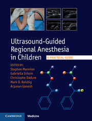 Ultrasound-Guided Regional Anesthesia in Children