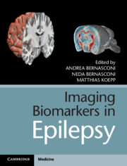 Imaging Biomarkers in Epilepsy