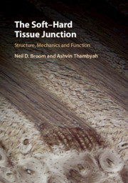 The Soft–Hard Tissue Junction