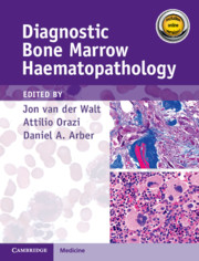 Diagnostic Bone Marrow Haematopathology