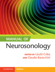 Manual neurosonology neurology and clinical neuroscience look inside manual of neurosonology fandeluxe Images
