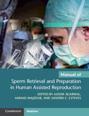 Manual of Sperm Retrieval and Preparation in Human Assisted Reproduction