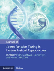 Manual of Sperm Function Testing in Human Assisted Reproduction