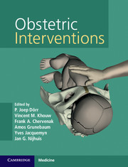 Obstetric Interventions