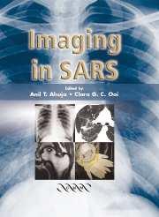 Imaging in SARS