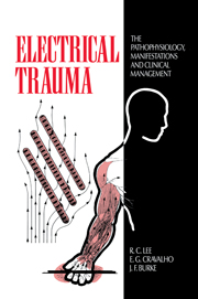 Electrical Trauma