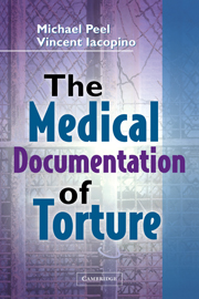 The Medical Documentation of Torture