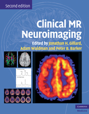 Clinical MR Neuroimaging