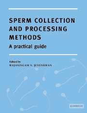 Sperm Collection and Processing Methods