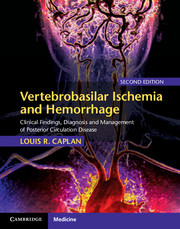 Vertebrobasilar Ischemia and Hemorrhage