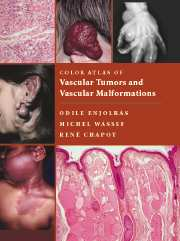 Color Atlas of Vascular Tumors and Vascular Malformations