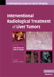 Interventional Radiological Treatment of Liver Tumors