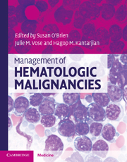 Management of Hematologic Malignancies