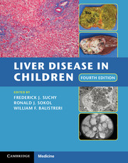Liver Disease in Children