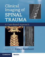 Clinical Imaging of Spinal Trauma