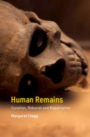 Cambridge Texts in Human Bioarchaeology and Osteoarchaeology