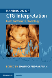 Handbook of CTG Interpretation