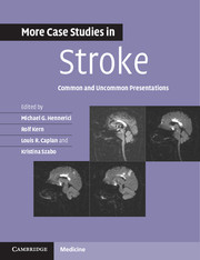 More Case Studies in Stroke