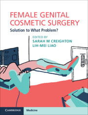 Cosmetic Surgery Ebook