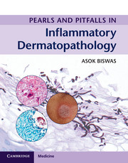 Pearls and Pitfalls in Inflammatory Dermatopathology